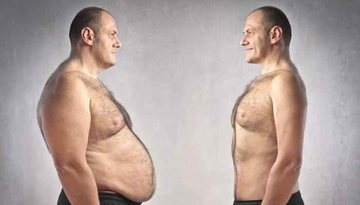 слева признак ожирения первого типа