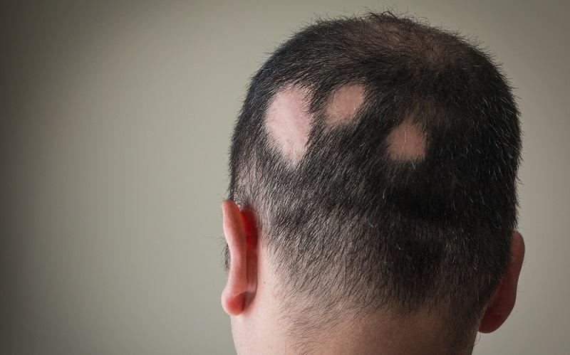 очаговое выпадение волос у мужчин