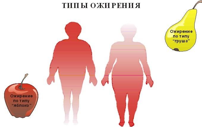 формы ожирений