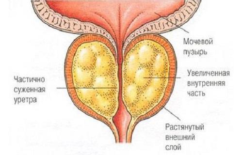 Как развивается аденома предстательной железы