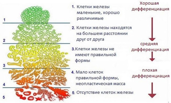схема шкалы глиссона