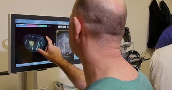 фьюжн биопсия простаты