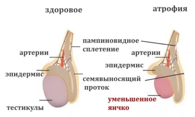 Атрофия яичек – симптомы и лечение, признаки атрофии яичка — Медицинский женский центр в Москве