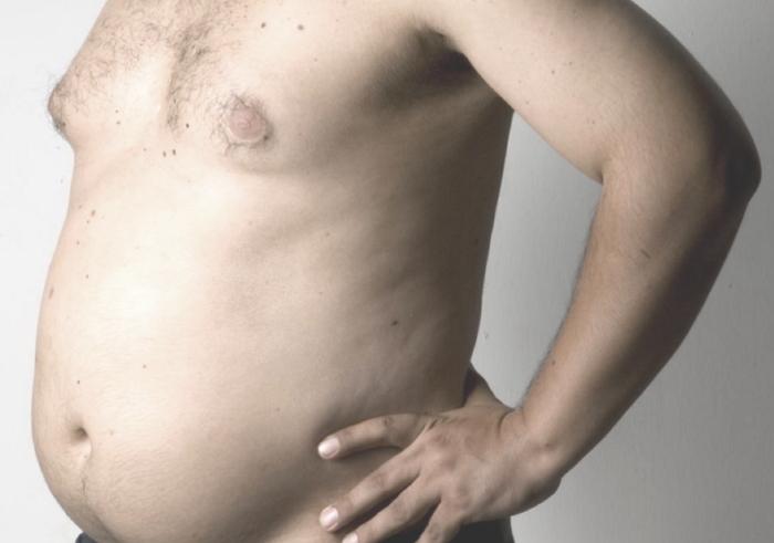 Симптомы и лечение гипогонадизма у мужчин