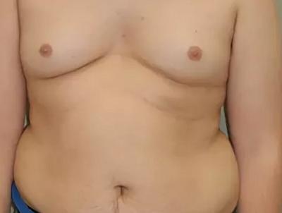 Гипофизарный гипогонадизм у мужчин иженщин: причины, симптомы, диагностика, лечение